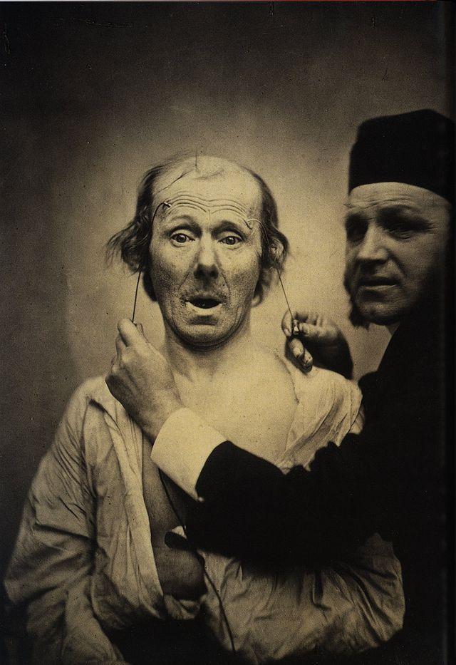 Guillaume Duchenne electroestimulacón facial